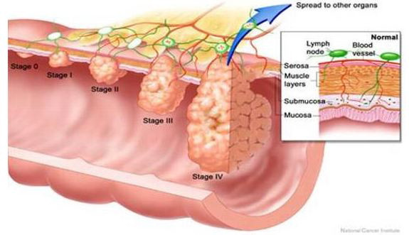 Colon cancer graphic showing stages of colon cancer