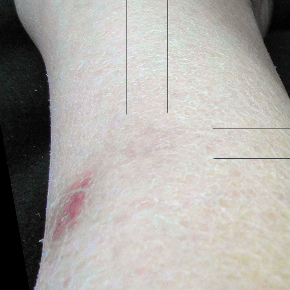 Spider bite is still visible a year later, at center where the lines enclose.